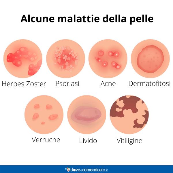 Immagine infografica che rappresenta alcune malattie della pelle