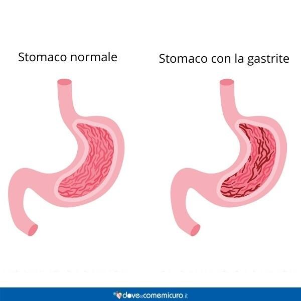 Immagine infografica che rappresenta l'anatomia dello stomaco normale e con la gastrite