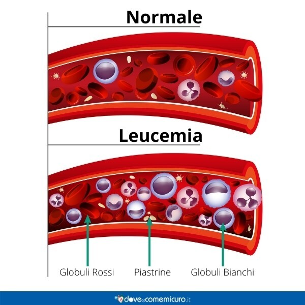 Immagine infografica che rappresenta il sangue con leucemia