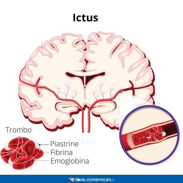 Immagine infografica che rappresenta l'ictus nel cervello