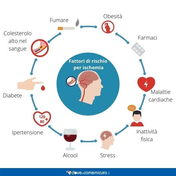 Immagine infografica che rappresenta le principali cause di un'ischemia