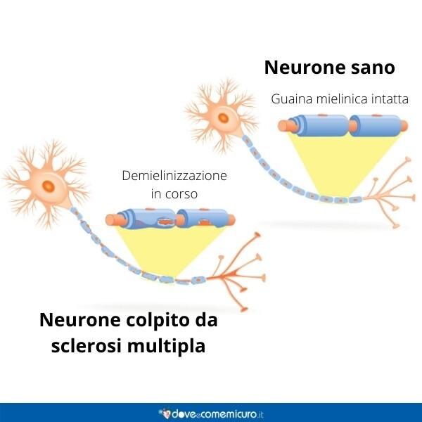immagine infografica che rappresenta un neurone sano e uno affetto da sclerosi multipla