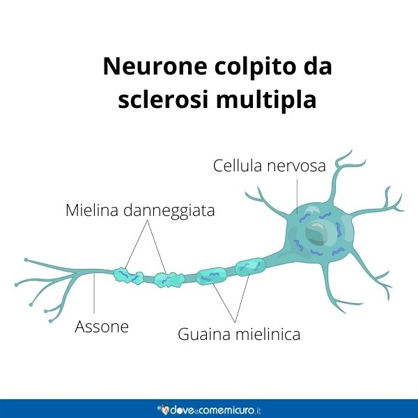 Immagine infografica che rappresenta un neurone colpito da sclerosi multipla