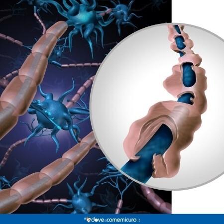 Immagine che rappresenta come la guaina mielinica di un neurone si sia deteriorata