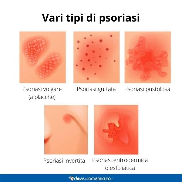 Immagine infografica che rappresenta vari tipi di psoriasi