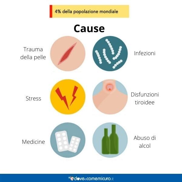 Immagine infografica che rappresenta le cause della psoriasi