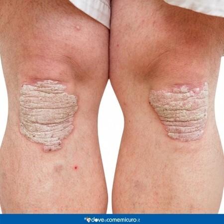 Immagine che rappresenta la psoriasi alle ginocchia