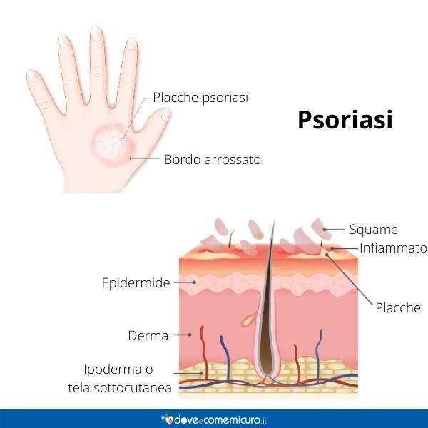 Immagine infografica che rappresenta una mano con psoriasi e lo strato dell'epidermide