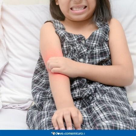 Immagine che rappresenta una bambina che si gratta il braccio