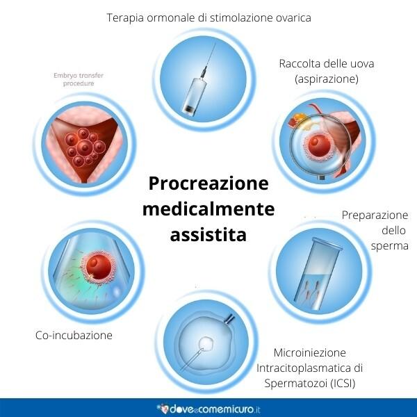 Immagine infografica che rappresenta il processo di una fecondazione medicalmente assistita