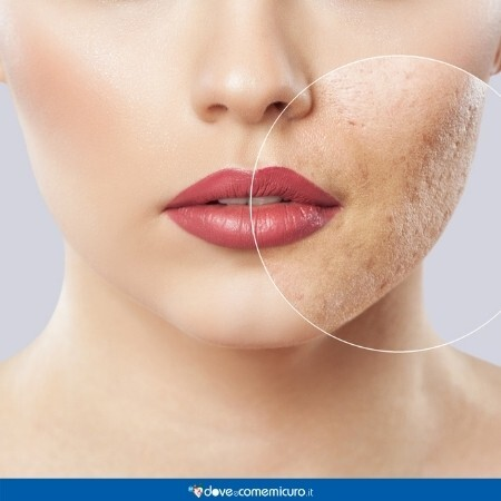 Immagine che rappresenta la faccia di una donna dopo il trattamento contro l'acne