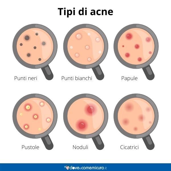 Immagine infografica che rappresenta i vari tipi di acne