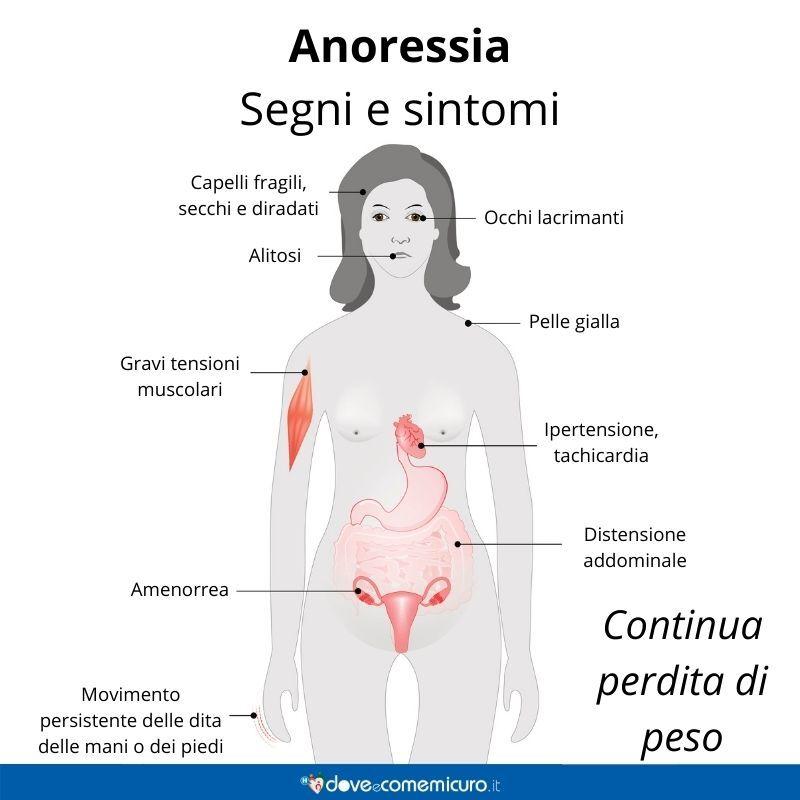 Immagine infografica che rappresenta sintomi e segni dell'anoressia