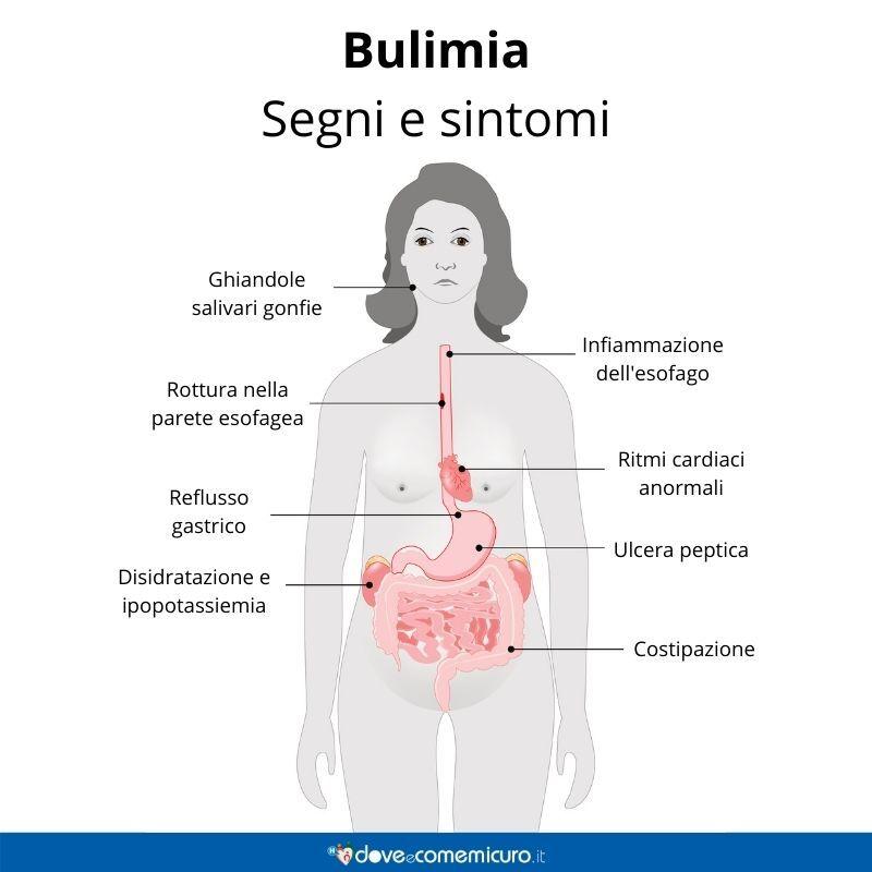 Immagine infografica che rappresenta sintomi e segni della bulimia