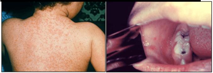 1-Esantema maculo-papulare del Morbillo 2-Macchie di Koplik