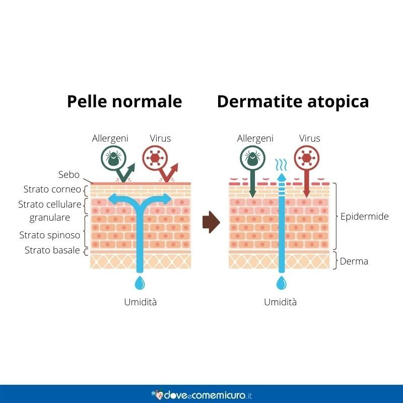 Immagine infografica che rapprese il tessuto della dermatite atopica e della pelle normale