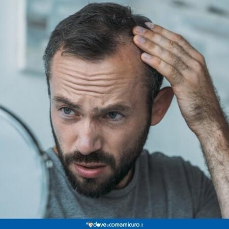 Immagine che rappresenta un uomo con l'alopecia