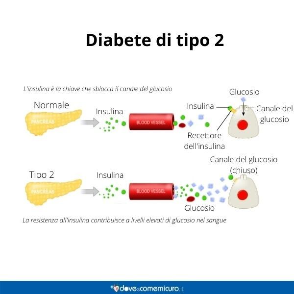 Immagine infografica che rappresenta il diabete di tipo 2