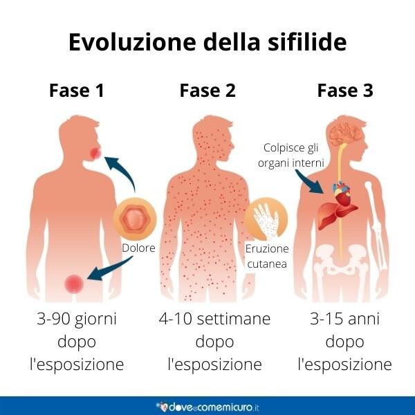 Immagine infografica che rappresenta l'evoluzione della sifilide