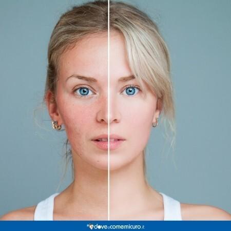 Immagine che rappresenta una donna con problemi alla pelle