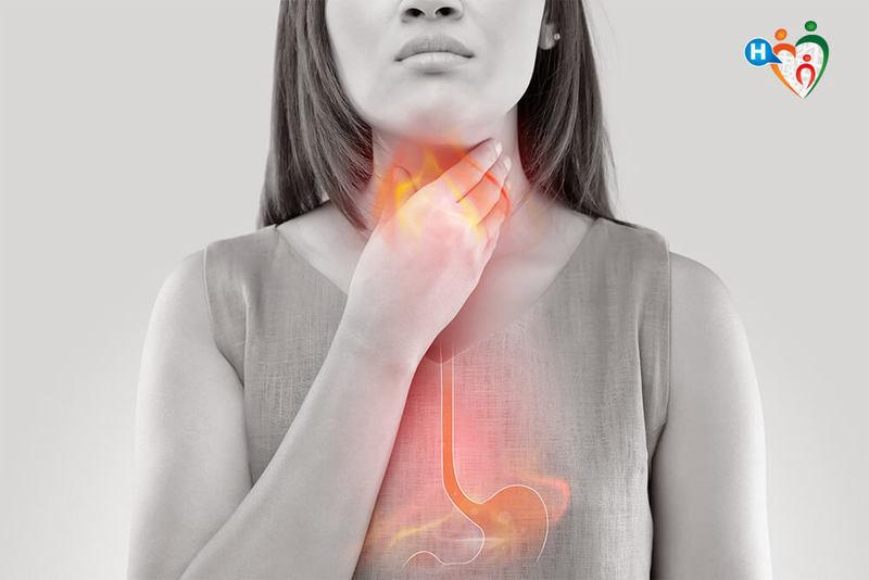 dieta problemi di bruciore di stomaco