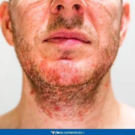 Immagine che rappresenta un uomo con problemi alla pelle