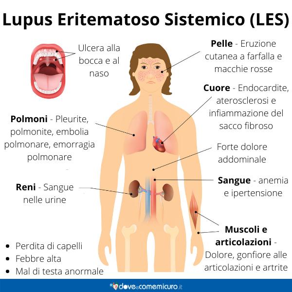 Immagine infografica che rappresenta il Lupus Eritematoso Sistemico