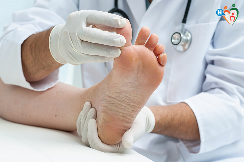Dolore al piede - Cause e Sintomi