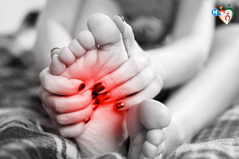Dolore sotto il piede? Potrebbe essere fascite plantare