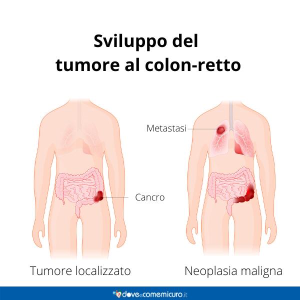 Immagine infografica che rappresenta lo sviluppo del tumore al colon retto