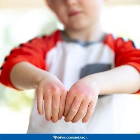 Immagine che rappresenta un bambino con Malattie cutanee: eczemi