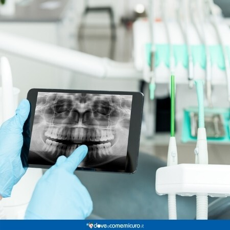 Immagine che rappresenta una radiografia dentale