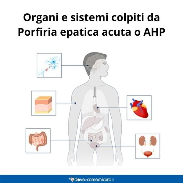 Immagine infografica che rappresenta gli organi colpiti da porfiria
