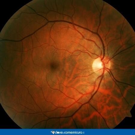 Immagine che rappresenta la retina di un occhio umano