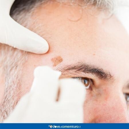 Immagine che rappresenta una visita dermatologica di controllo di un basalioma