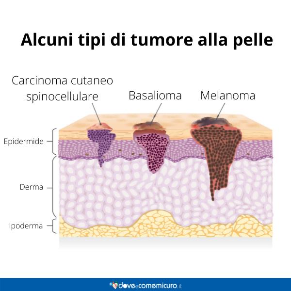 Immagine infografica che rappresenta alcuni tipi di tumore alla pelle