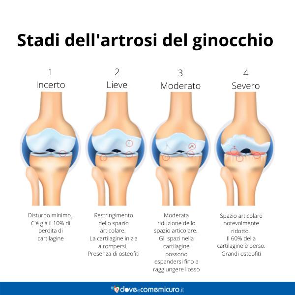 Immagine infografica che rappresenta gli stadi dell'artrosi al ginocchio