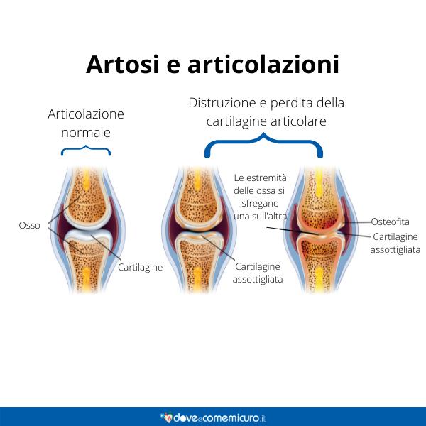 Immagine infografica che rappresenta le articolazioni colpite da artrosi