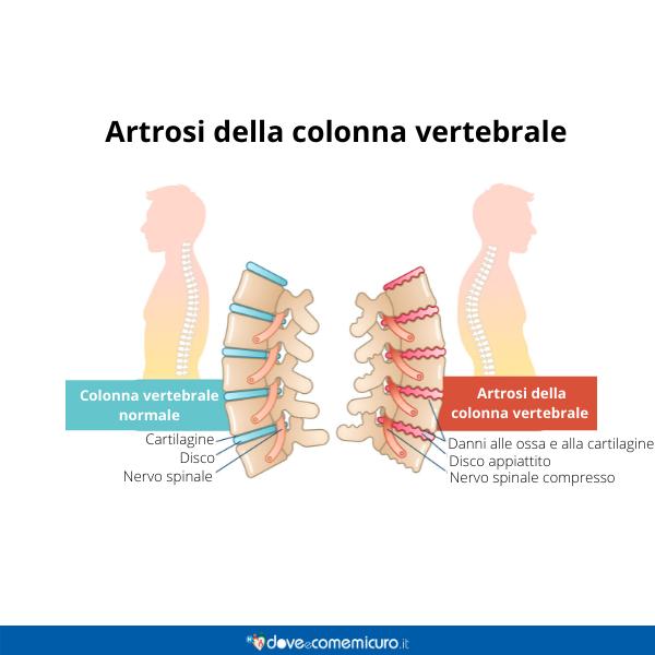 Immagine infografica che rappresenta l'artrosi alla colonna vertebrale