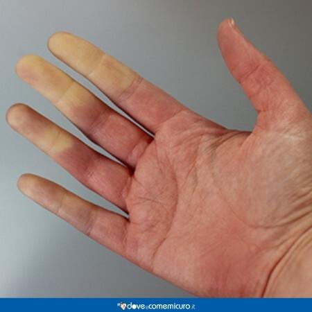 Immagine che rappresenta una mano affetta da sclerodermia