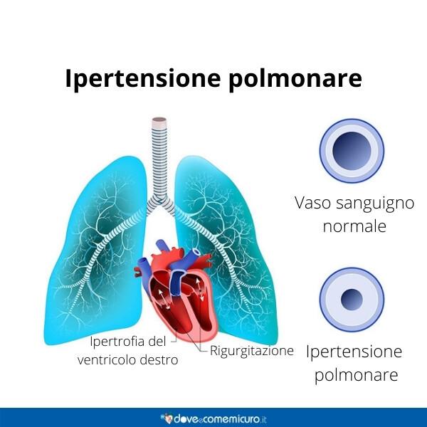 Immagine che rappresenta una ipertensione popolare