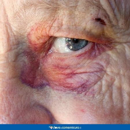 Immagine che rappresenta una persona che ha un ematoma sotto l'occhio