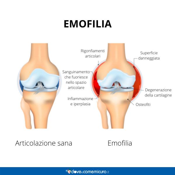 Immagine infografica che rappresenta un arto con emofilia