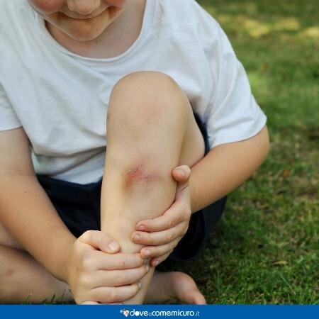 Immagine che rappresenta un bambino con un livido alla gamba