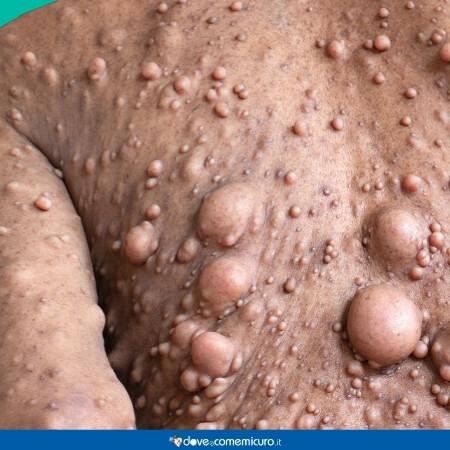 Immagine che rappresenta una persona affetta da neurofibromatosi (NF)