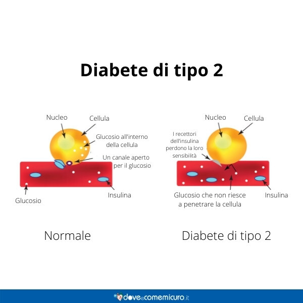 Immagine che infografica rappresenta una cellula normale e l'altra affetta da diabete di tipo 2