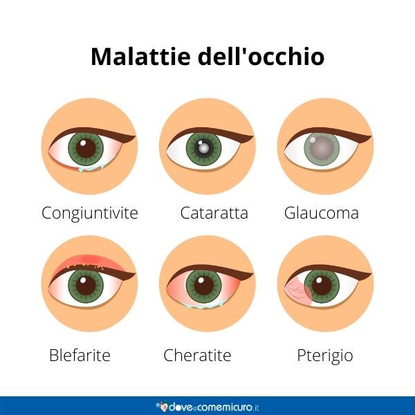 Immagine infografica che rappresenta le malattie dell'occhio