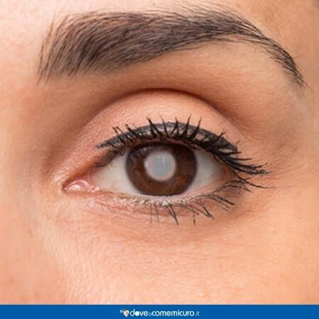 Immagine che rappresenta un uomo con la cataratta ad un occhio