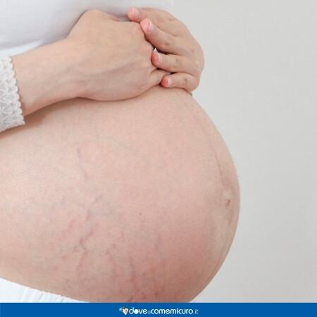 Immagine che rappresenta una donna incinta con le smagliature