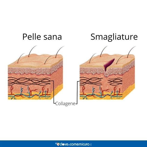 Immagine infografica che rappresenta una pelle sana da una con smagliature